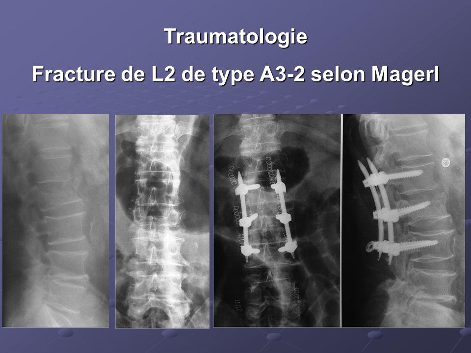 Fracture de L2 de type A3-2 selon Magerl