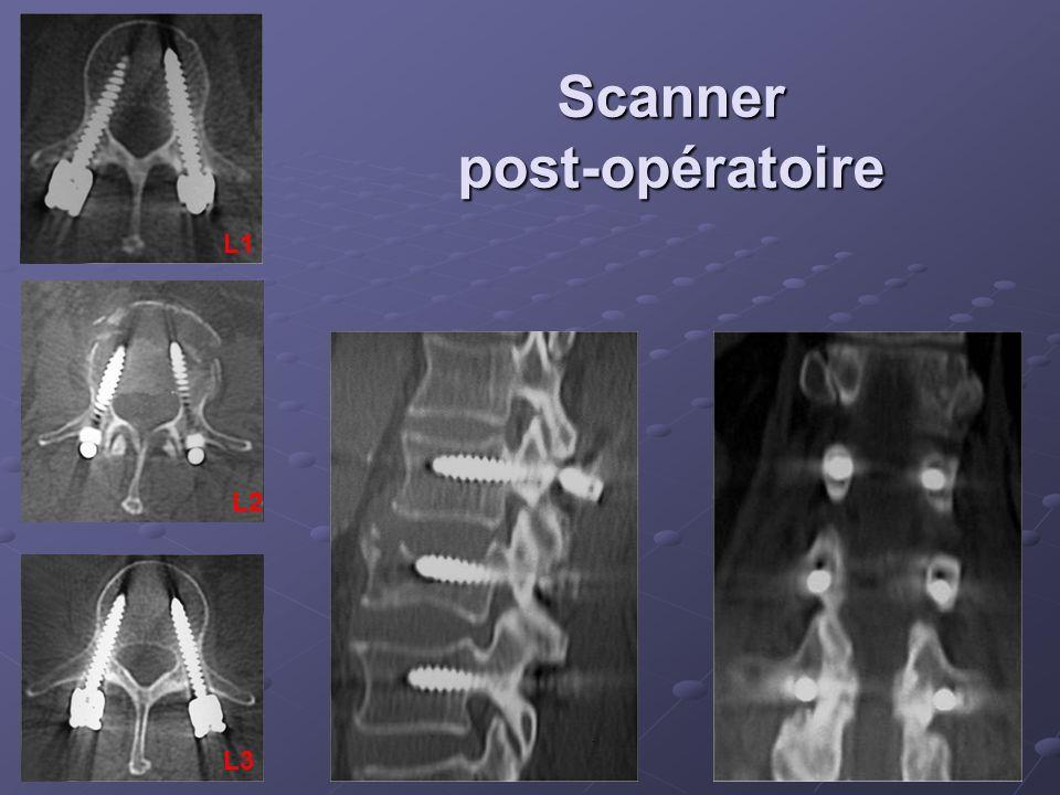 Scanner post-opératoire