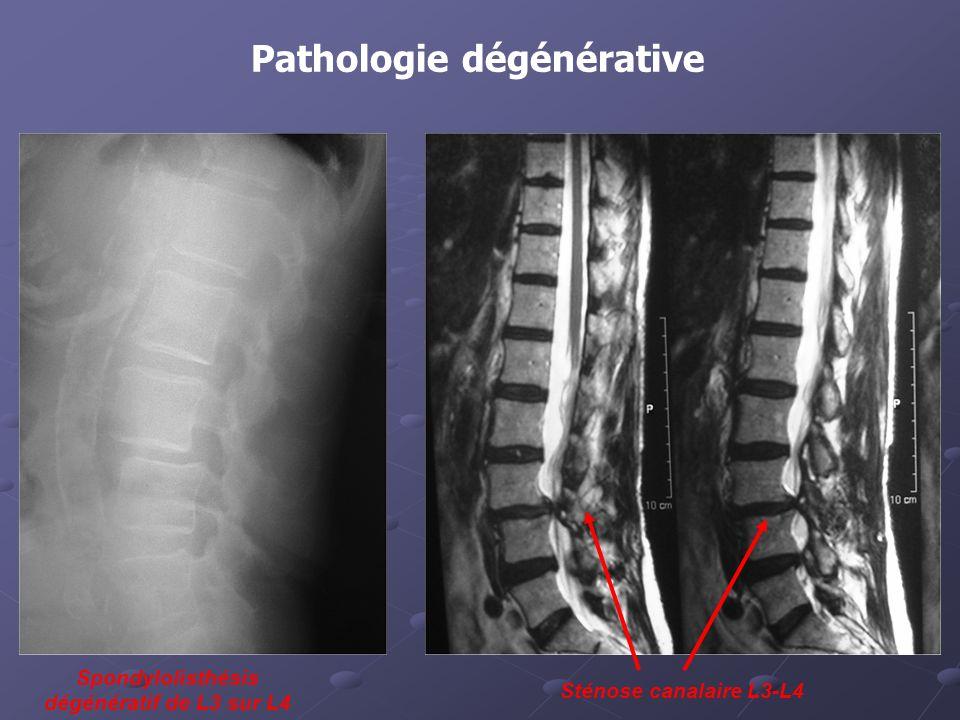 Pathologie dégénérative Spondylolisthésis dégénératif de L3 sur L4