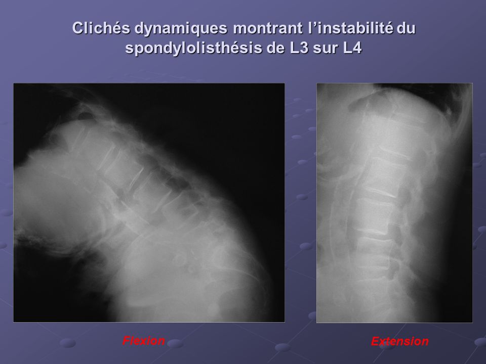 Clichés dynamiques montrant l'instabilité du spondylolisthésis de L3 sur L4