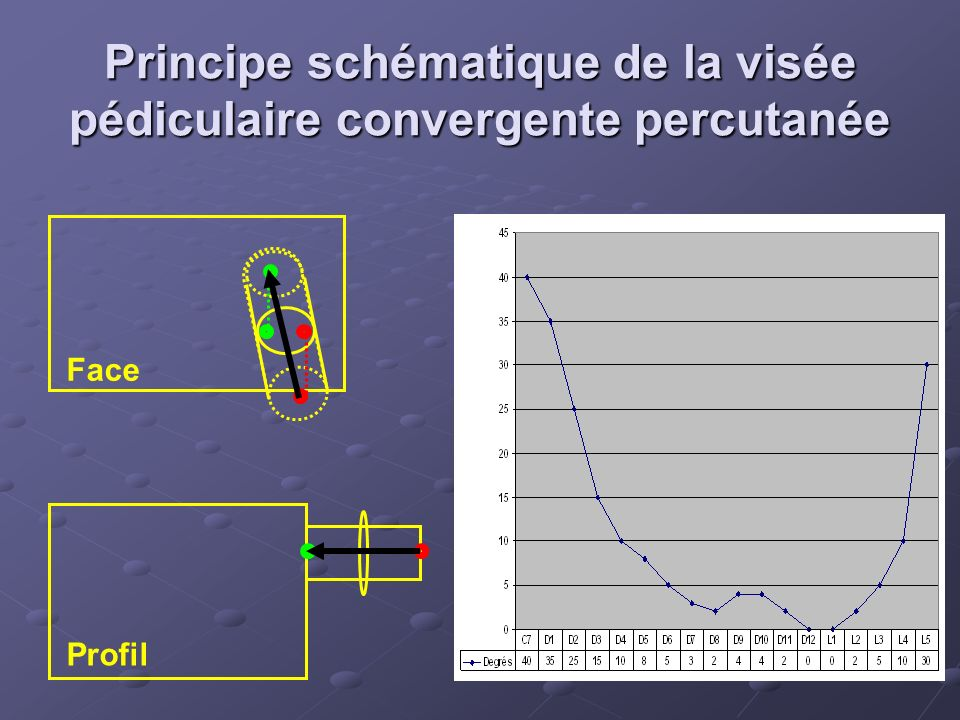 Principe schématique de la visée pédiculaire convergente percutanée