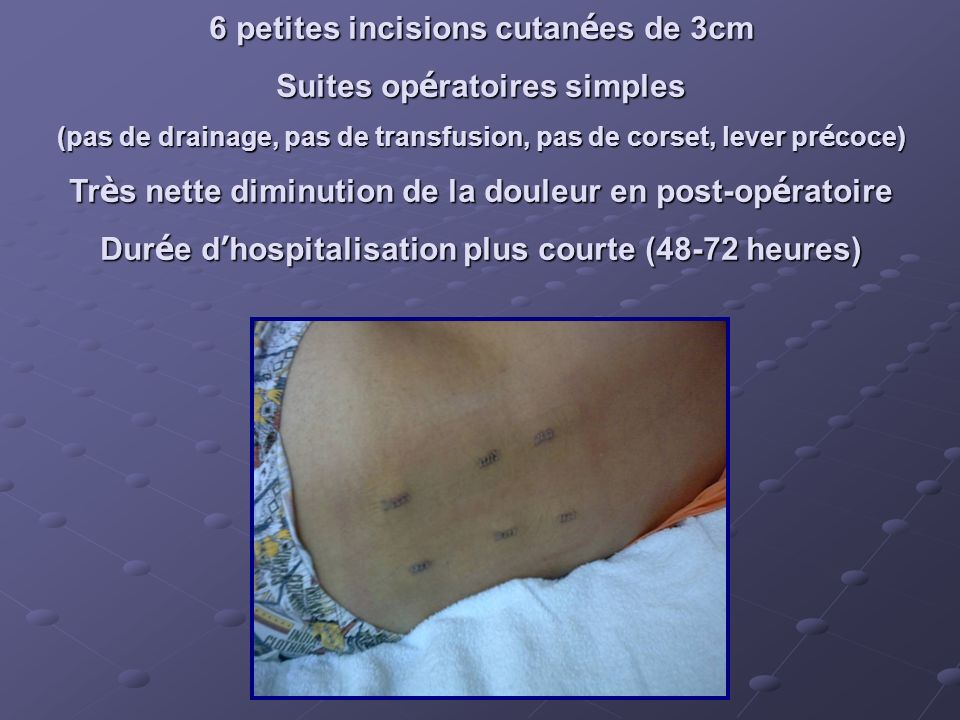 6 petites incisions cutanées de 3cm Suites opératoires simples
