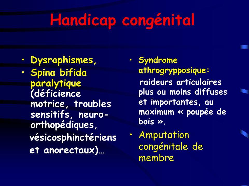 Handicap congénital Dysraphismes,