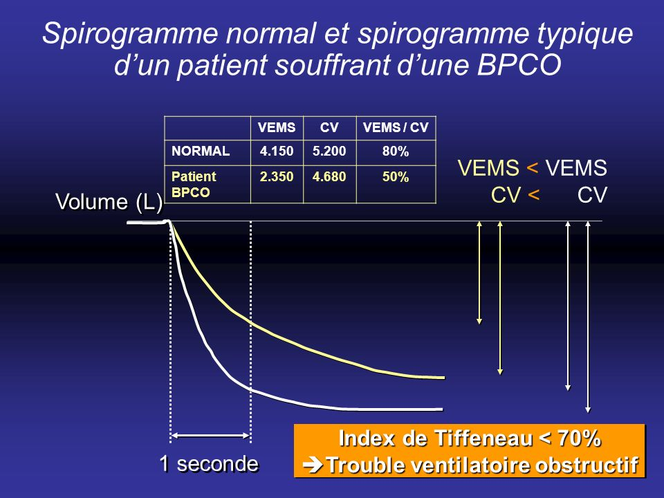 Index de Tiffeneau < 70% Trouble ventilatoire obstructif
