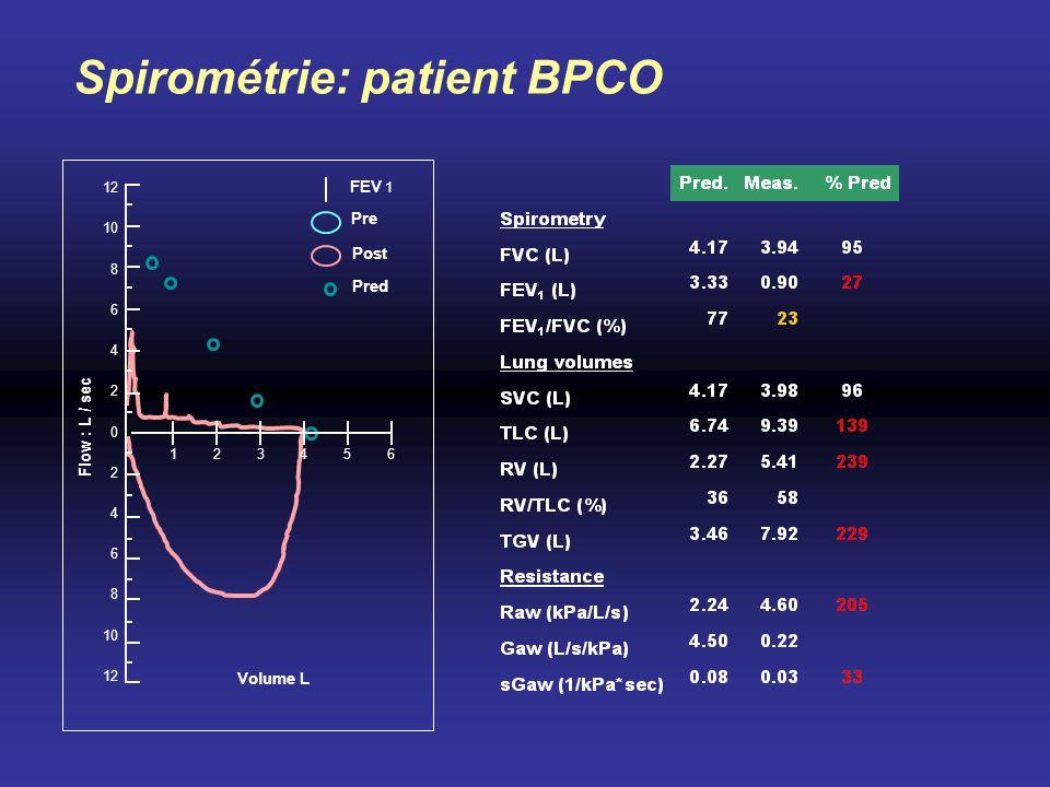 Spirométrie: patient BPCO