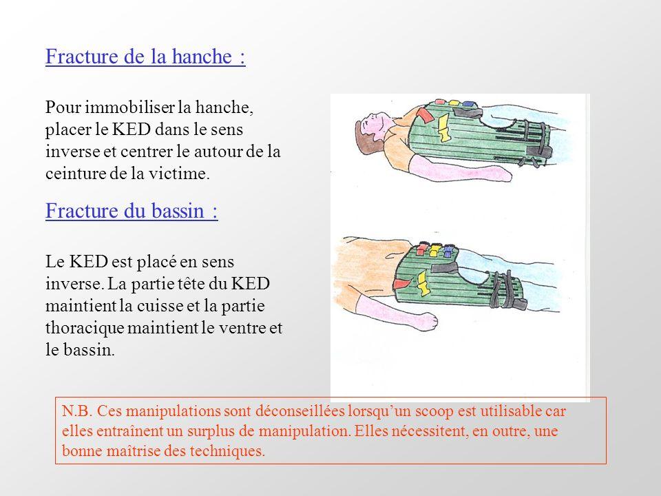 Fracture de la hanche : Fracture du bassin :