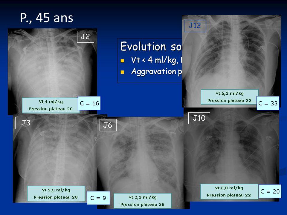 P., 45 ans Evolution sous ECMO Vt < 4 ml/kg, PP 28 cmH2O