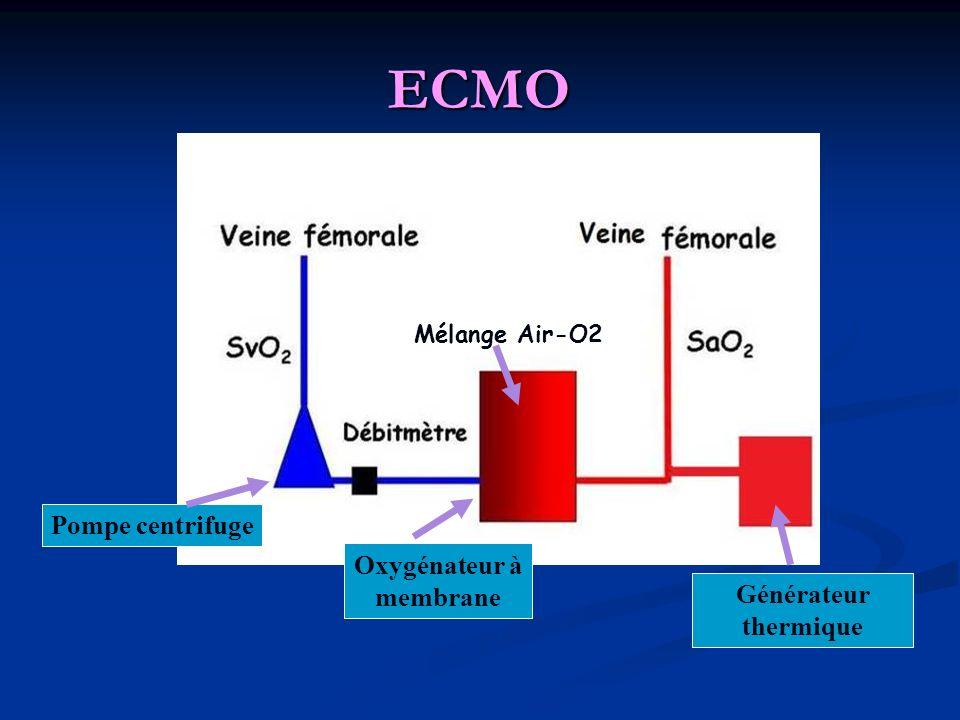 ECMO Pompe centrifuge Oxygénateur à membrane Générateur thermique