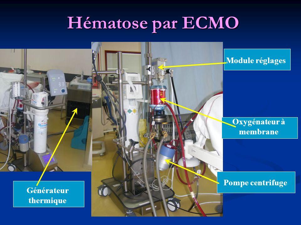 Hématose par ECMO Module réglages Oxygénateur à membrane