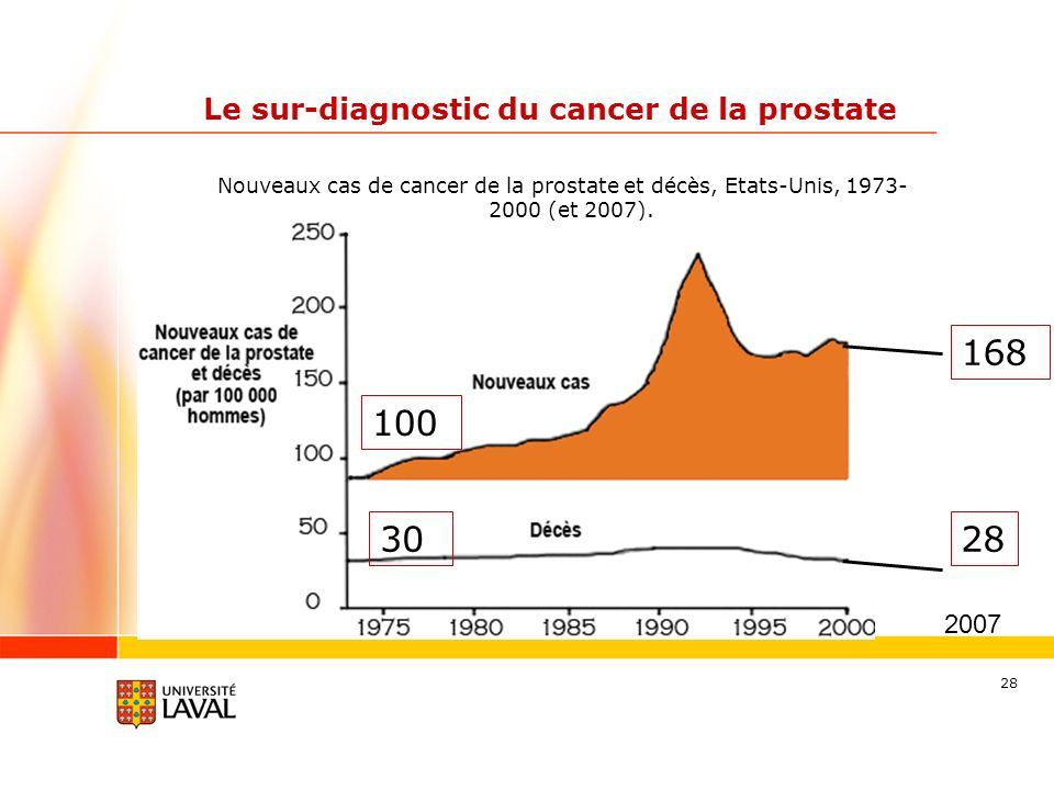 Le sur-diagnostic du cancer de la prostate