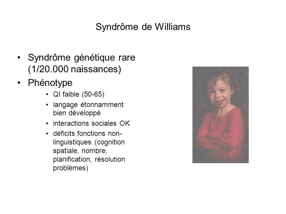 Syndrôme génétique rare (1/20.000 naissances) Phénotype