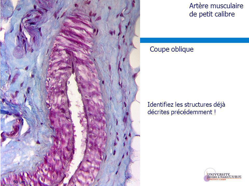 Artère musculaire de petit calibre