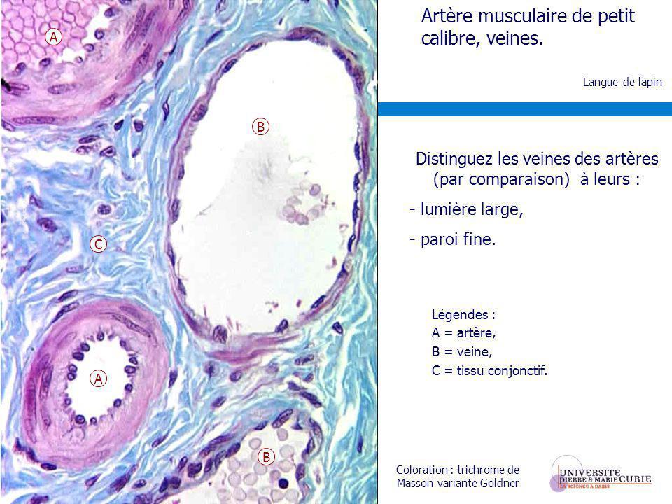 Distinguez les veines des artères (par comparaison) à leurs :