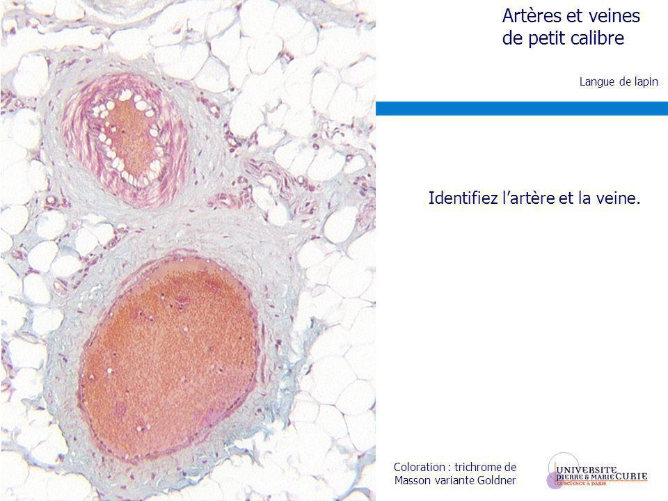 Identifiez l'artère et la veine.