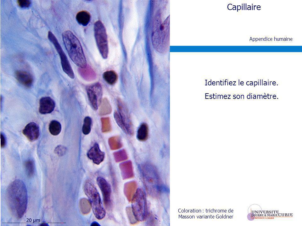 Identifiez le capillaire.