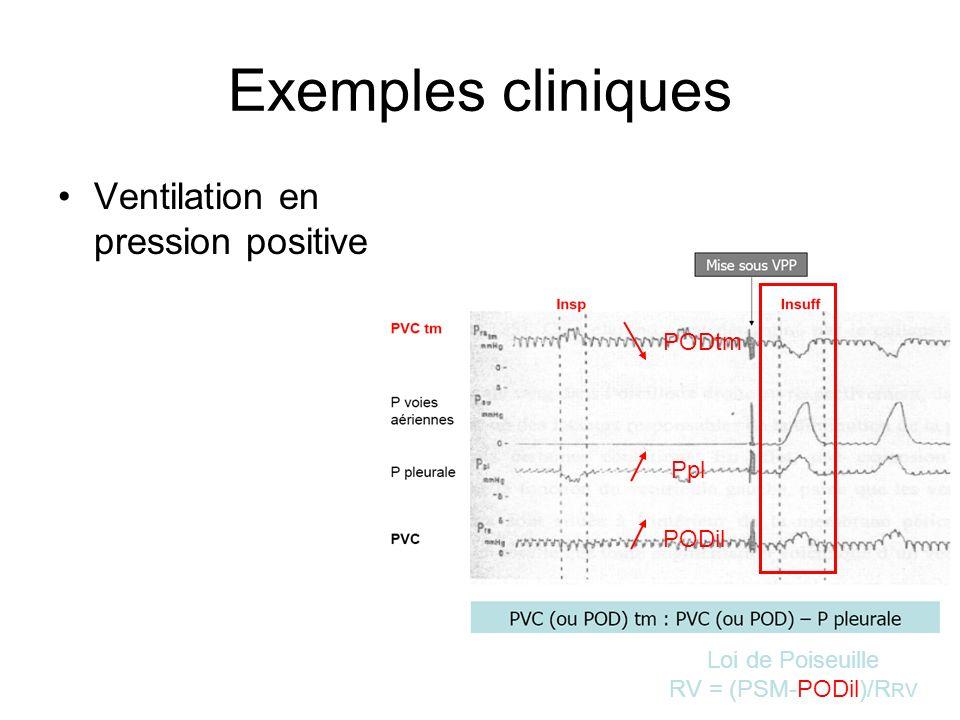 Exemples cliniques Ventilation en pression positive PODtm Ppl PODil