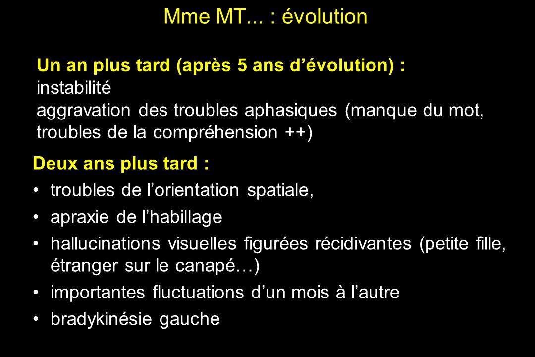Mme MT... : évolution Un an plus tard (après 5 ans d'évolution) :