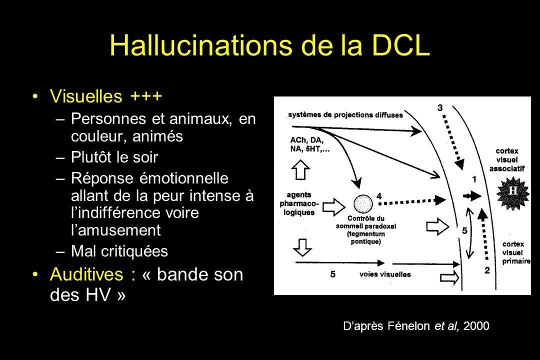 Hallucinations de la DCL