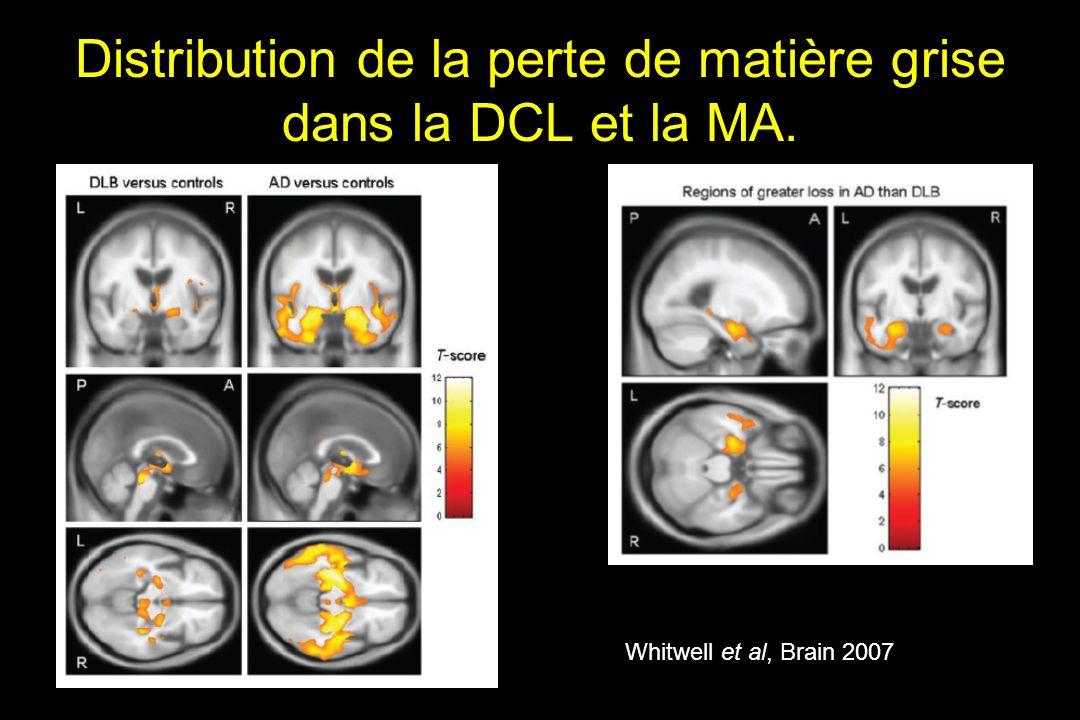 Distribution de la perte de matière grise dans la DCL et la MA.