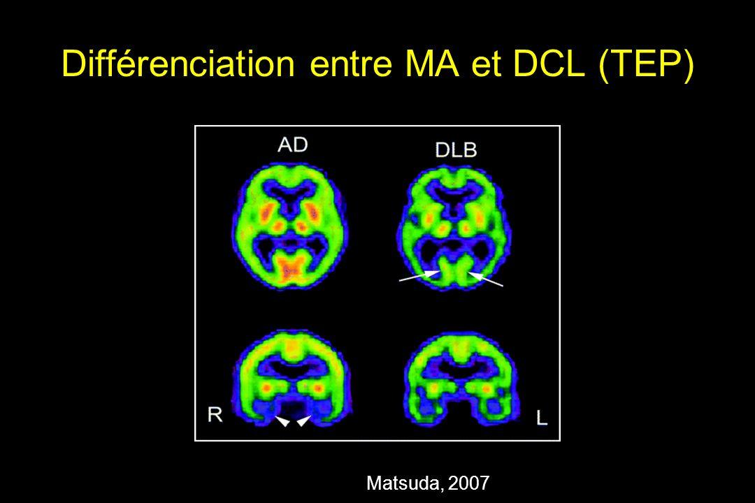 Différenciation entre MA et DCL (TEP)