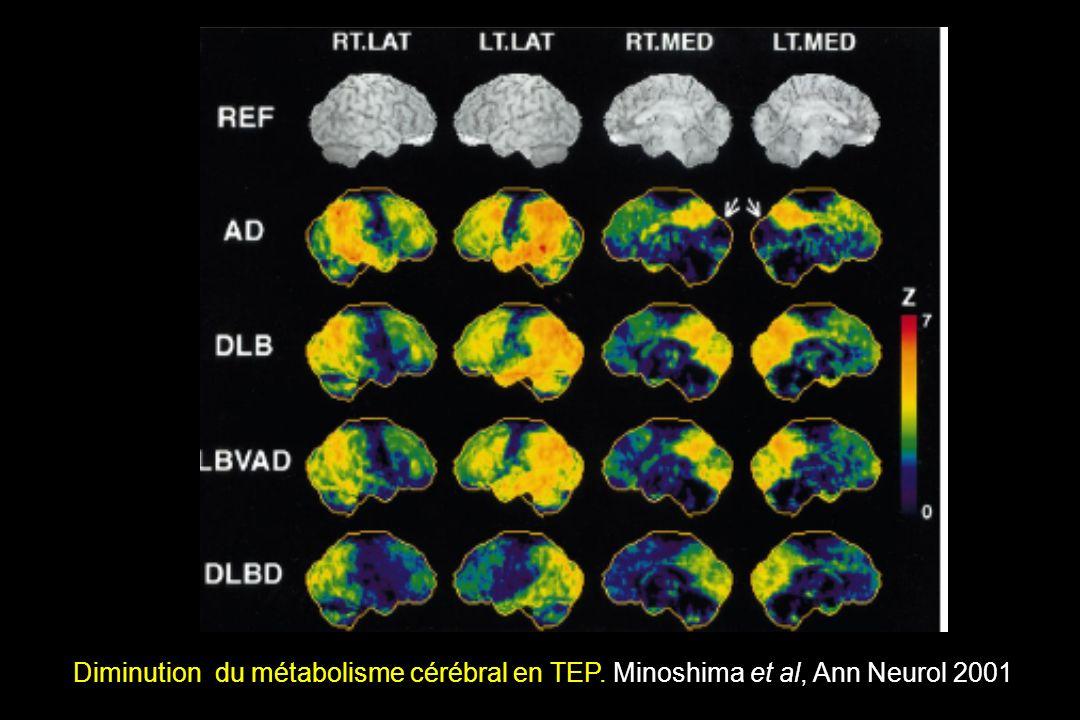 Diminution du métabolisme cérébral en TEP