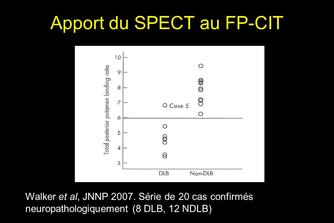 Apport du SPECT au FP-CIT