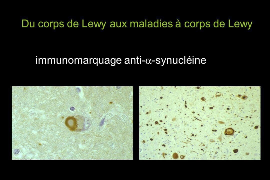 Du corps de Lewy aux maladies à corps de Lewy