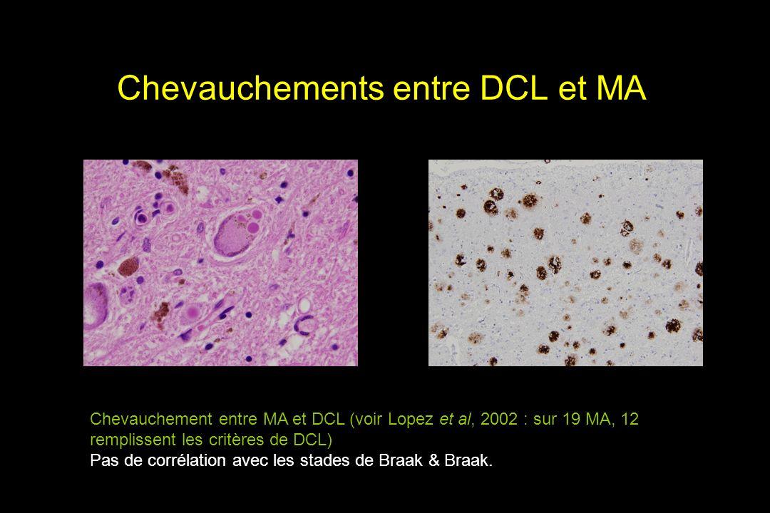 Chevauchements entre DCL et MA