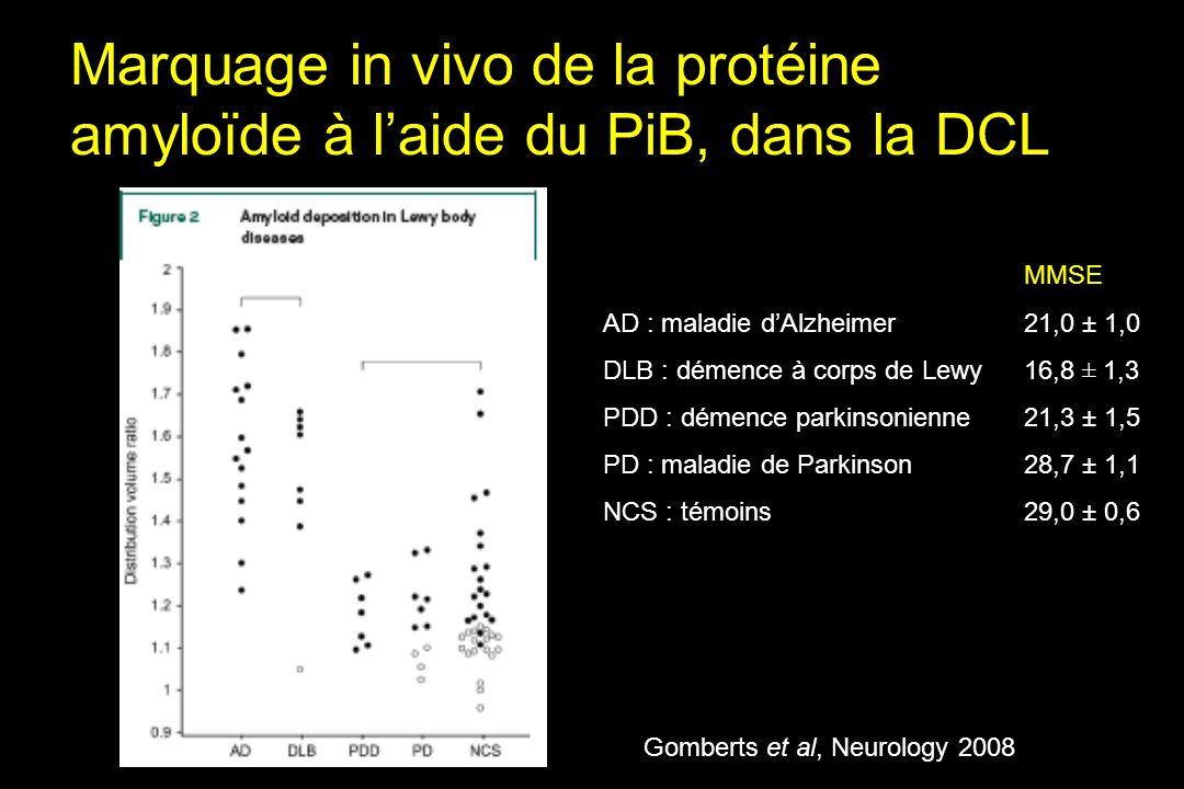 Marquage in vivo de la protéine amyloïde à l'aide du PiB, dans la DCL