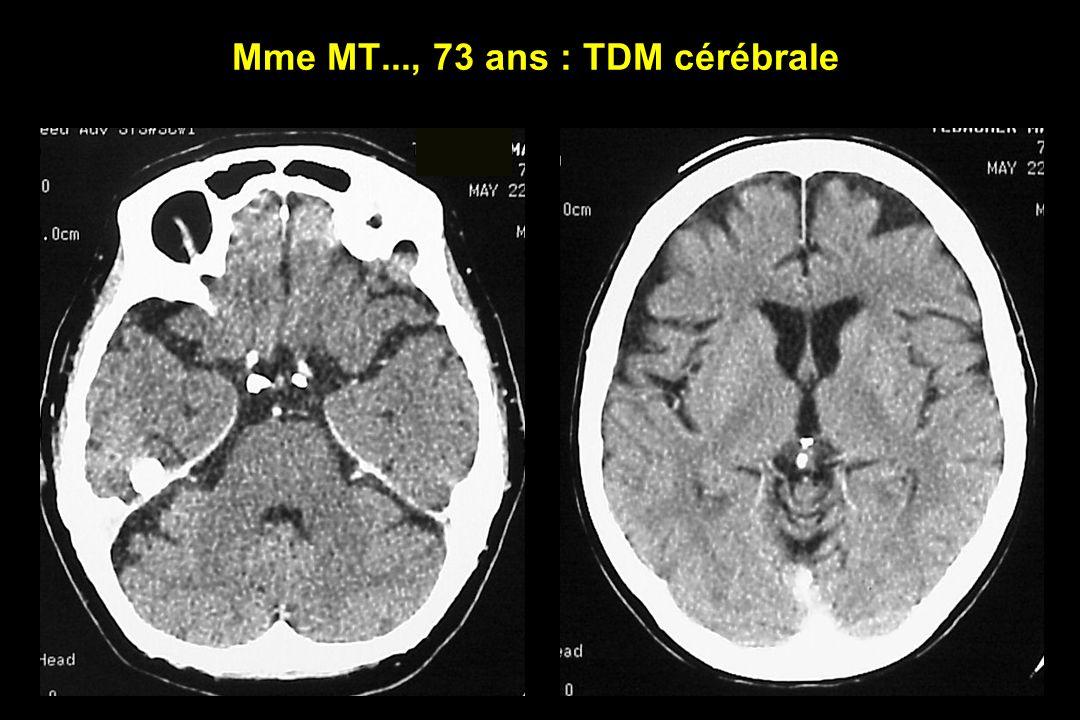 Mme MT..., 73 ans : TDM cérébrale