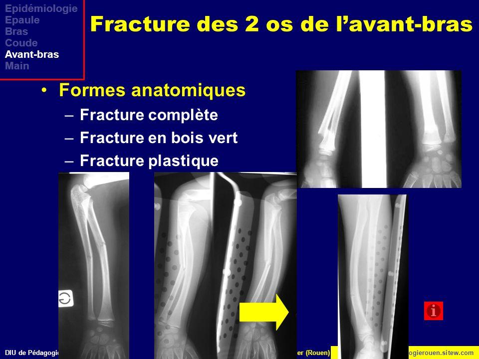 Fracture des 2 os de l'avant-bras