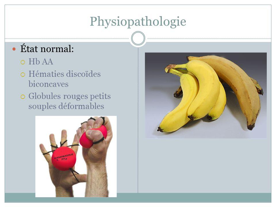 Physiopathologie État normal: Hb AA Hématies discoïdes biconcaves