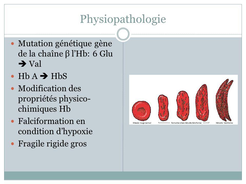 Physiopathologie Mutation génétique gène de la chaîne β l'Hb: 6 Glu  Val. Hb A  HbS. Modification des propriétés physico-chimiques Hb.