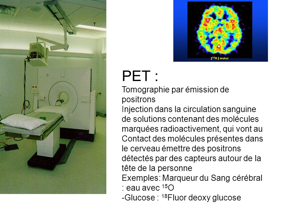 PET : Tomographie par émission de positrons
