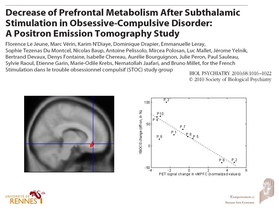 Figure 1: Statistical parametric maps displaying differences between cerebral glucose metabolism of patients with STN DBS in on versus off stimulation conditions. Significant decrease (two-tailed P < 0.005, k>100) are shown on three orthogonal views. In on-stimulation condition, the right orbitofrontal cortex shows decreased metabolic activity (A)