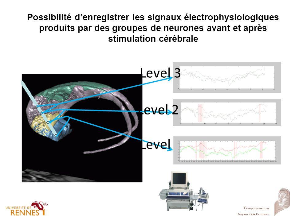 Possibilité d'enregistrer les signaux électrophysiologiques produits par des groupes de neurones avant et après stimulation cérébrale
