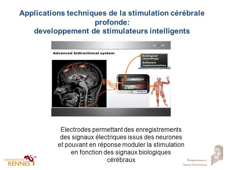 Applications techniques de la stimulation cérébrale profonde: