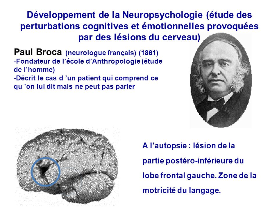 Paul Broca (neurologue français) (1861)