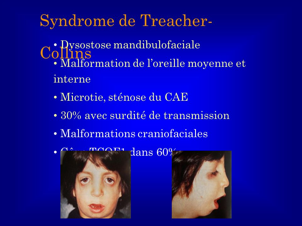 Syndrome de Treacher-Collins