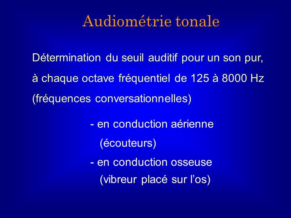 Audiométrie tonale Détermination du seuil auditif pour un son pur, à chaque octave fréquentiel de 125 à 8000 Hz.