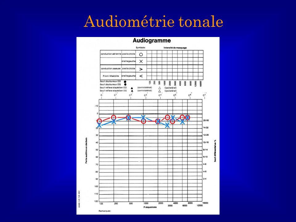 Audiométrie tonale