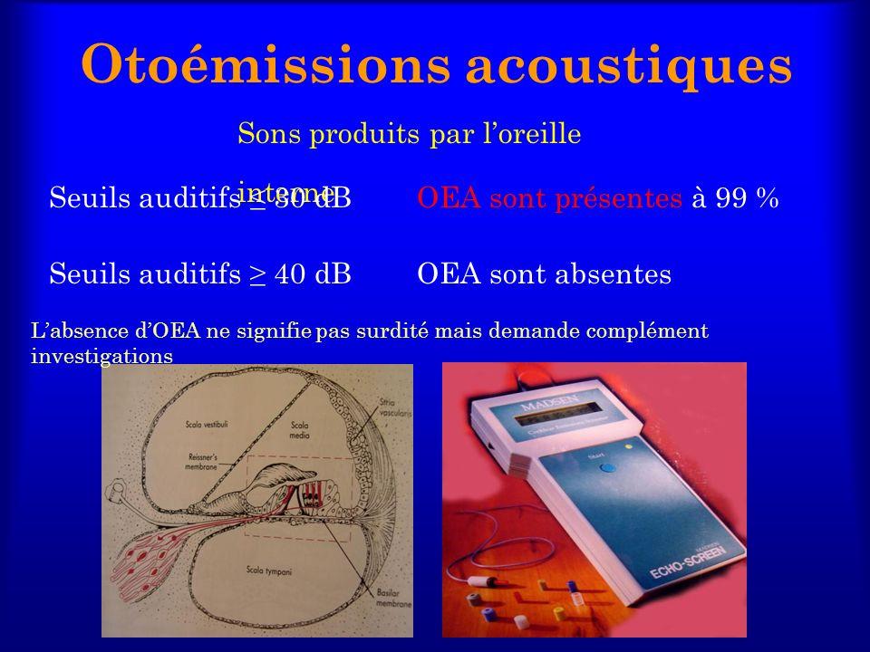 Otoémissions acoustiques
