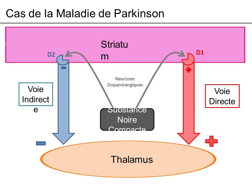 Cas de la Maladie de Parkinson