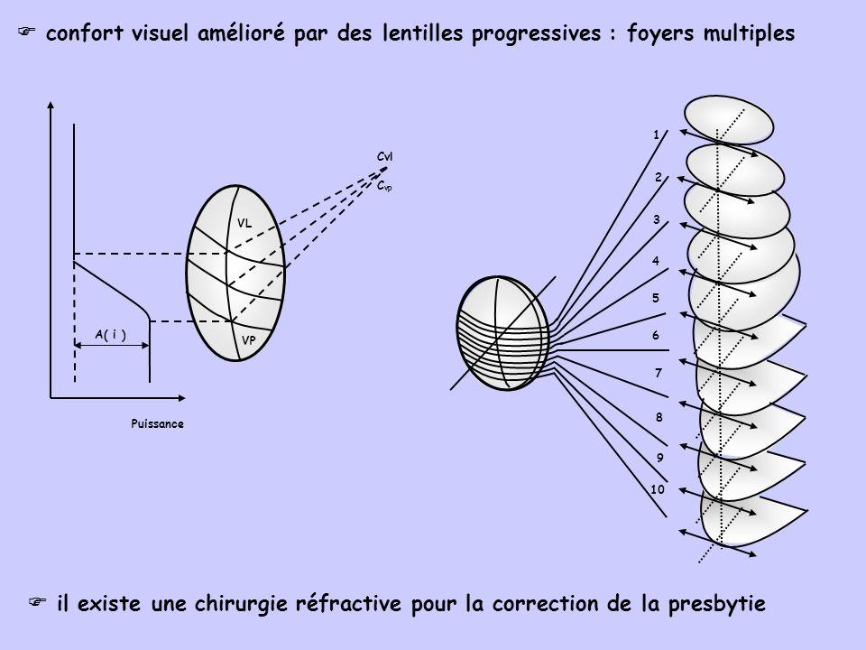  confort visuel amélioré par des lentilles progressives : foyers multiples