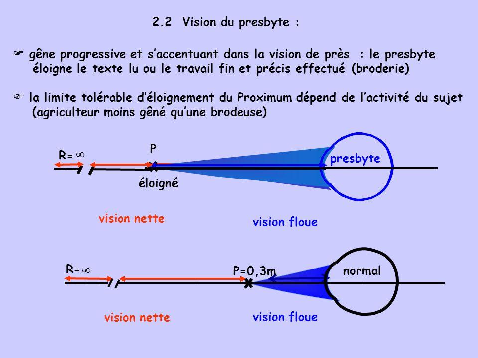 P P éloigné 2.2 Vision du presbyte :