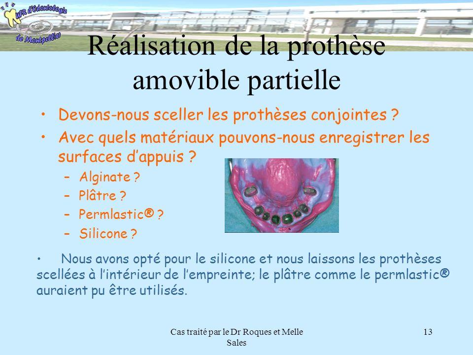 Réalisation de la prothèse amovible partielle