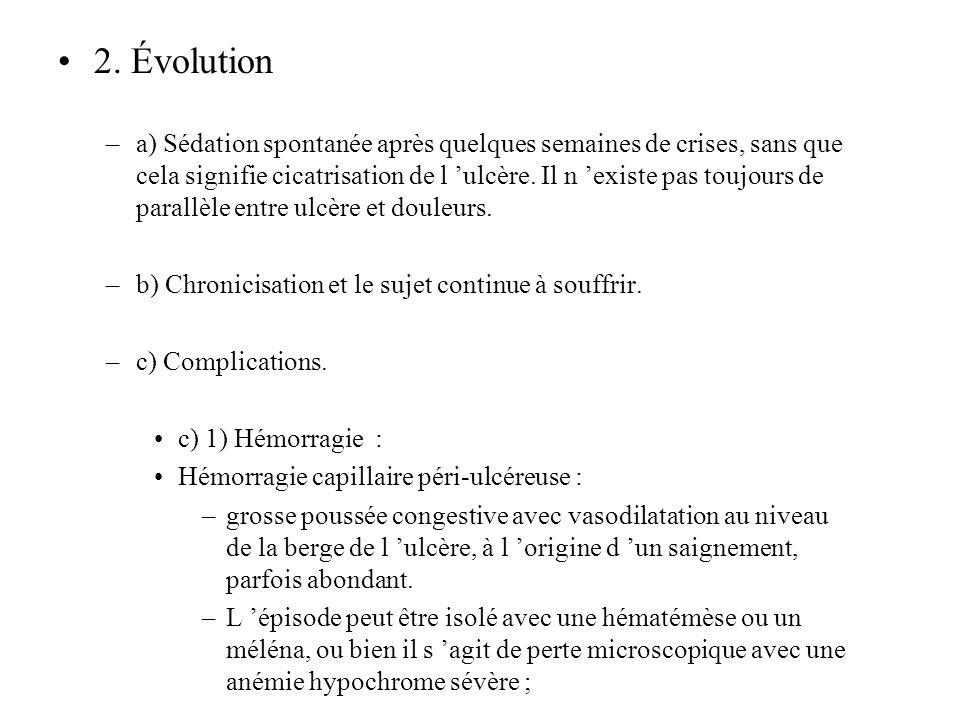 2. Évolution
