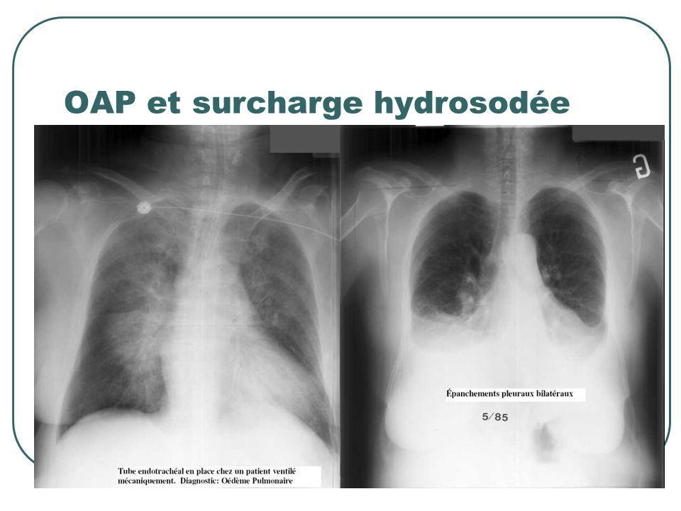 OAP et surcharge hydrosodée