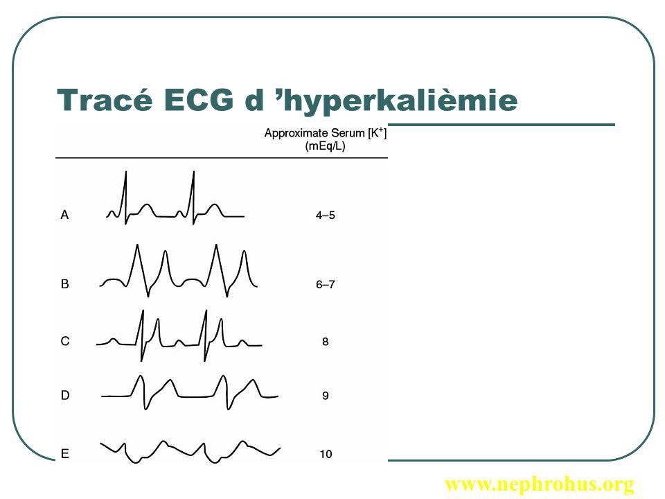 Tracé ECG d 'hyperkalièmie