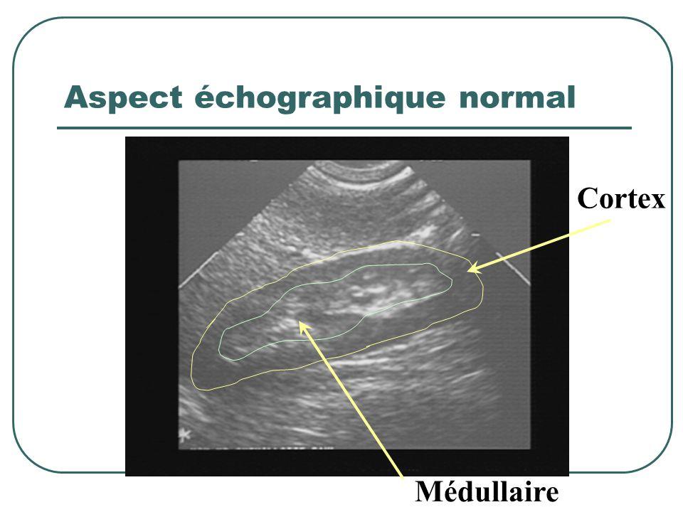 Aspect échographique normal